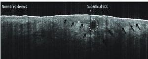 Imagen de OCT en carcinoma basocelular