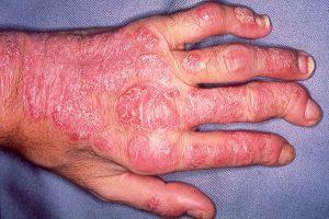 artritis psoriasis