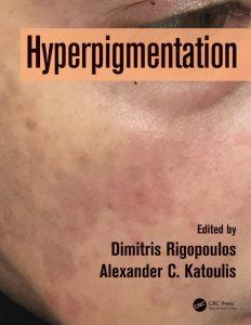 Hyperpigmentation (1)